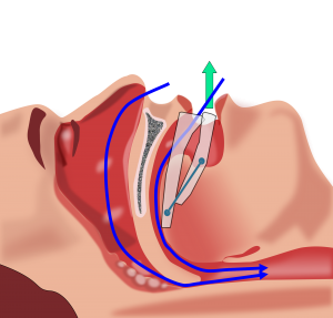 Could you be suffering from sleep apnea? 7 signs to look out for