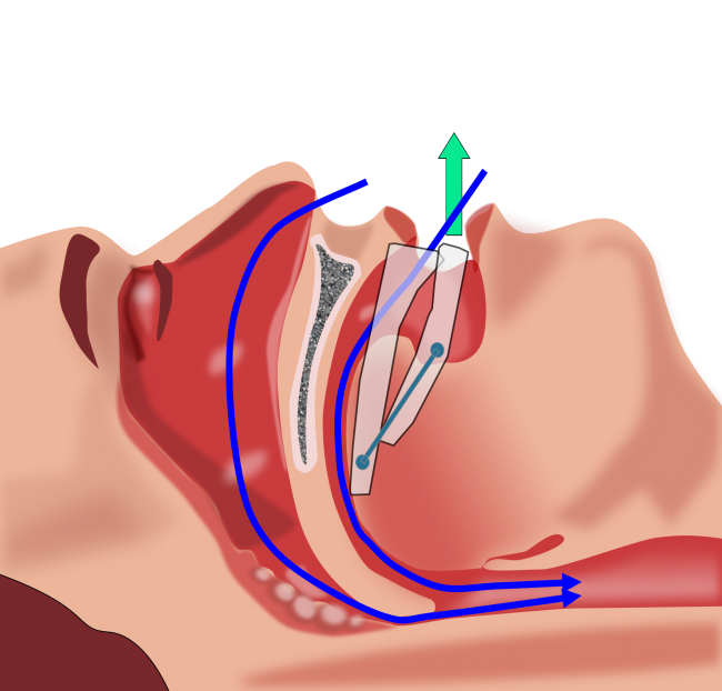 sleep apnea signs and causes