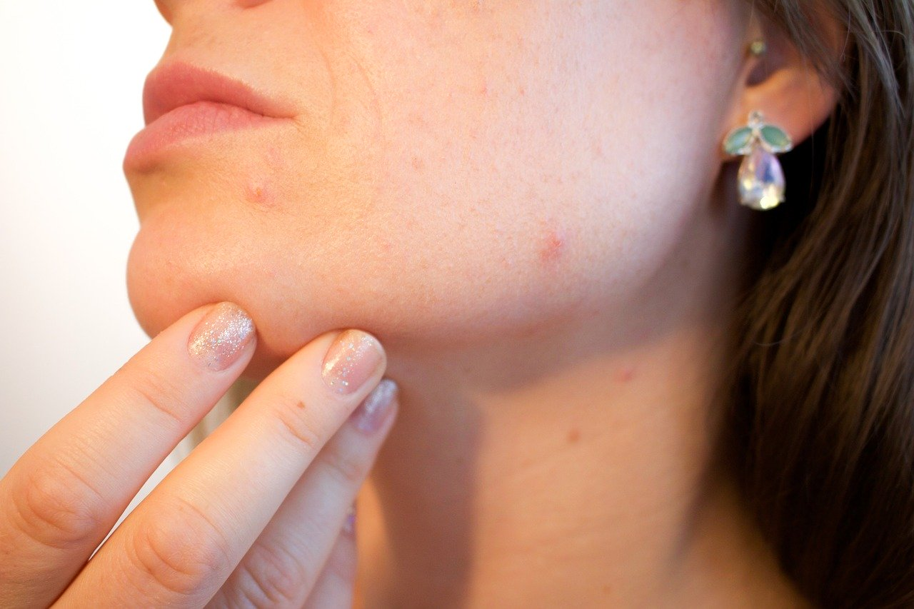 Is There a Topical Cure for Cystic Acne?