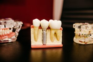 What are Wisdom Teeth and When Should They Be Removed?